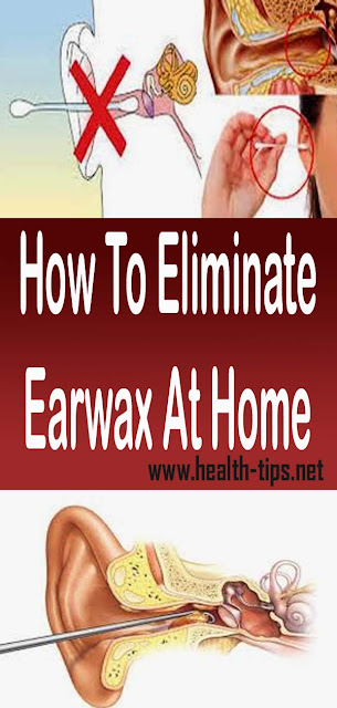 How To Eliminate Earwax At Home#NATURALREMEDIES