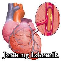 Cara Mengobati Penyakit Jantung Iskemik