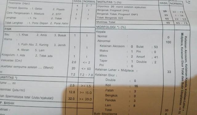 Sperma OligoTeratozoospermia, Globospermia
