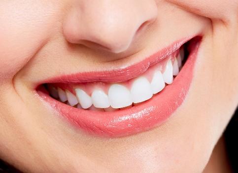 35 Cara Memutihkan Gigi Secara Alami Tanpa Efek Samping Uninto