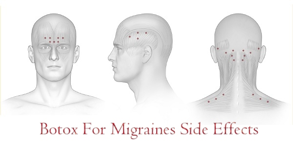 Botox For Migraines Side Effects
