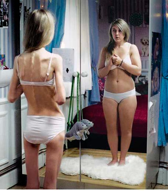 Rodrigo Santoro e Angelina Jolie: padrão de beleza ou anorexia?