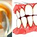 Turmeric Will Whiten Your Teeth Like You Have Never Imagined! Practice This And Yous Will Be Extremely Surprised By The Results!
