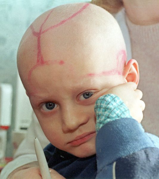 Kid with leukemia
