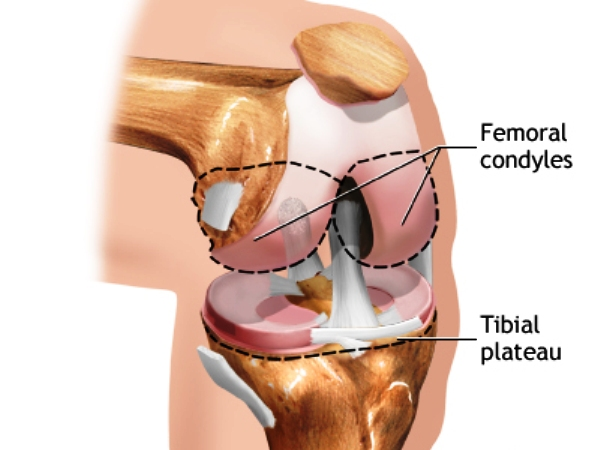 Knee Joint Replacement Process