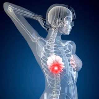 Symptoms and types of breast cancer