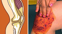 https://steviaven.blogspot.com/2017/10/dolor-rodilla-causas-remedios-caseros.html