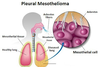 What Is Pleural Mesothelioma?
