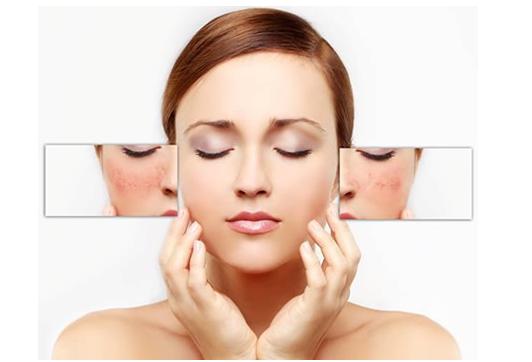 Eczema Skin Relief
