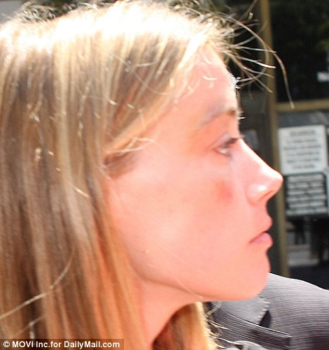 Photos: Amber Heard accuses Johnny Depp of attacking her,files for restraining order ...