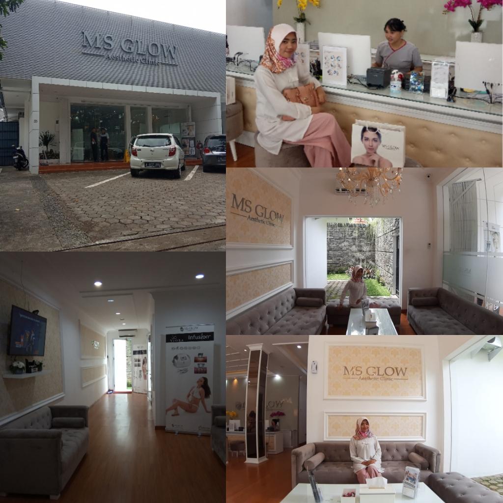 Review Treatment Di Ms Glow Clinic Bandung