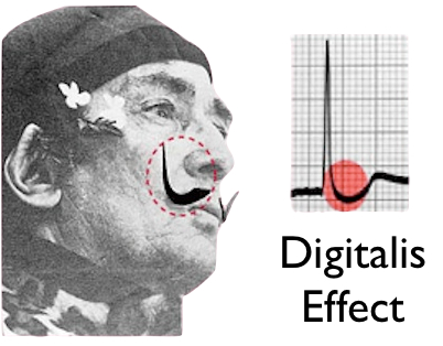 What are the effects of digitalization