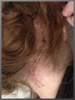 Cerebellar Surgery Craniotomy Scar