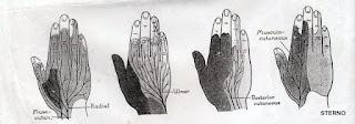 Saraf medianus, ulnaris dan radialis pada tangan dan jari manusia