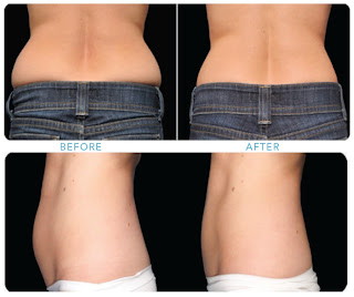 CoolSculpting Zap Unwanted Fat With CoolSculptingOther