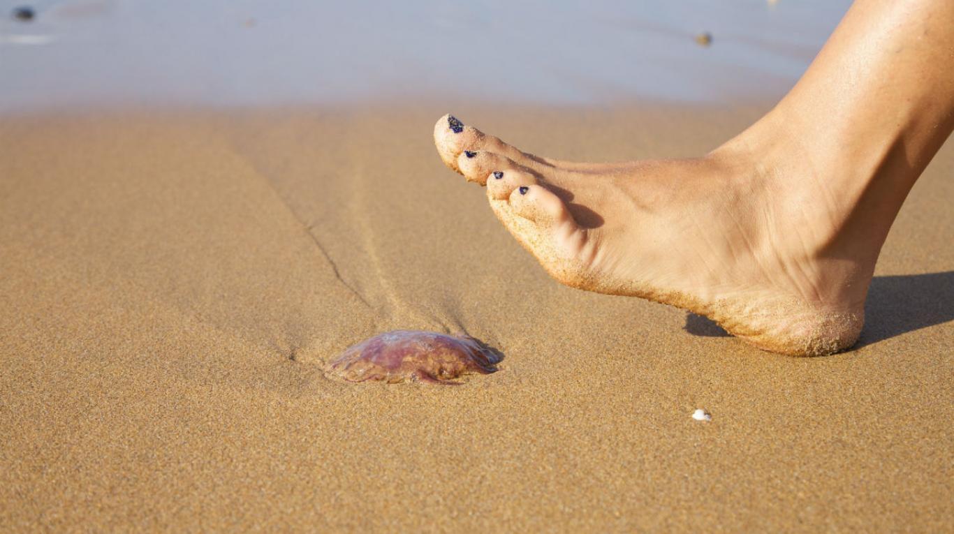 picadura medusas orina
