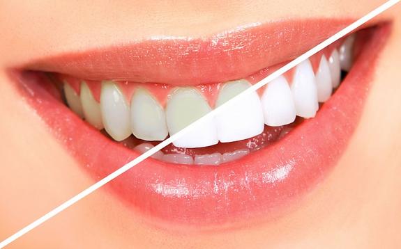 Tips Gigi Putih Berseri