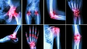 Ways to Cure Arthritis Naturally