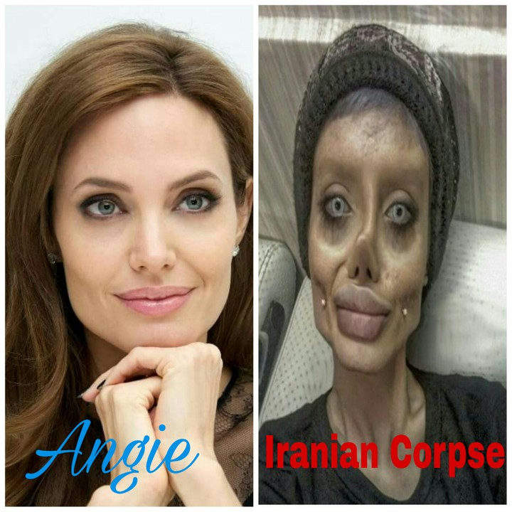 To Look Like Angelina Joline, Iranian Girl Undergoes Devastating Surgeries