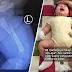 'Sampai tak ada air mata Hannah menangis' - Bayi 3 bulan patah paha ketika dijaga pengasuh