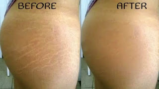 How To Get Rid Of Stretch Marks: 10 Effective Natural Remedies
