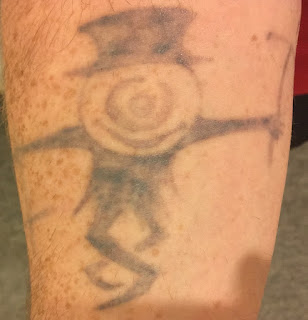 Picosure tattoo removal healing time