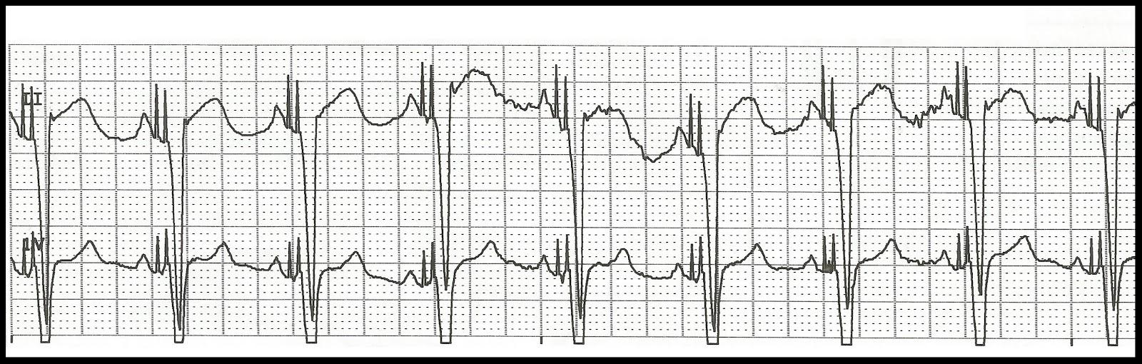 Float Nurse: EKG Rhythm Strip Quiz 144