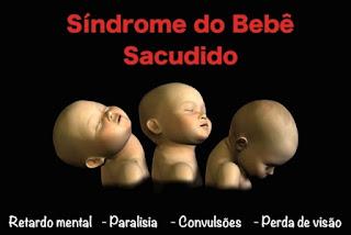 síndrome do bebê sacudido