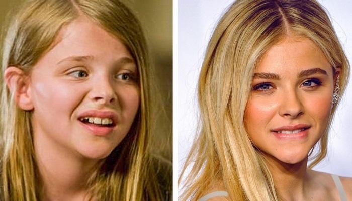 7 Bintang Cilik Hollywood yang Sudah Tumbuh Dewasa dan Tetap Tampil Cantik