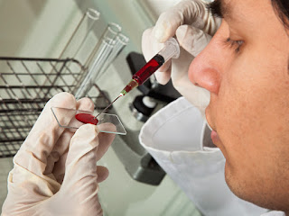 pcr test for herpes
