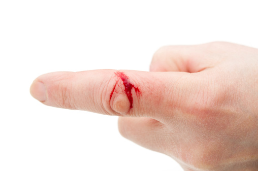 وصفات طبيعية للعناية بالجروح