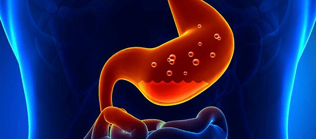 tratamientos naturales para la gastritis