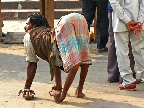 போலியோ மருந்து கண்டுபிடித்தவர் விஞ்ஞானி ஹிலாரி கோப்ரோவ்ஸ்கி !