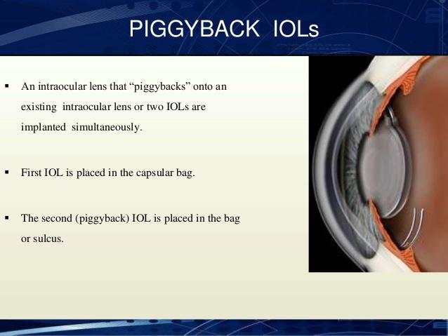 piggyback iol