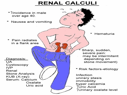 Nephrolithiasis overview and causes