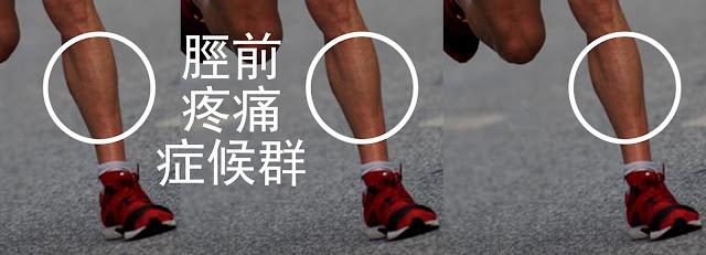 脛前疼痛症候群 運動傷害