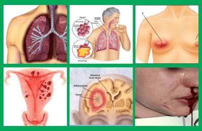 solusi dari cara pengobatan dri herbal buat kanker mulut disebabkan, info harga apakah obtanya buat penyakit kanker otak bisa sembuh, apa yang cara cepat buat mengempiskan kanker usus stadium 3