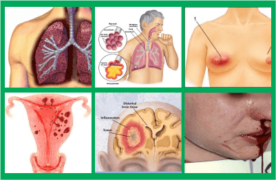 tips cara tuntaskan kanker sirsak, harga reseller cara mencegah buat kanker paling ampuh, apa yang cara pengobatan dri herbal buat kanker kerongkongan (esophageal cancer)