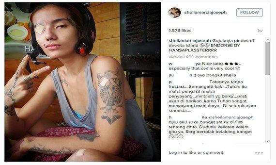 Kondisi terkini Sheila Marcia yang diambil dari akun Instagramnya
