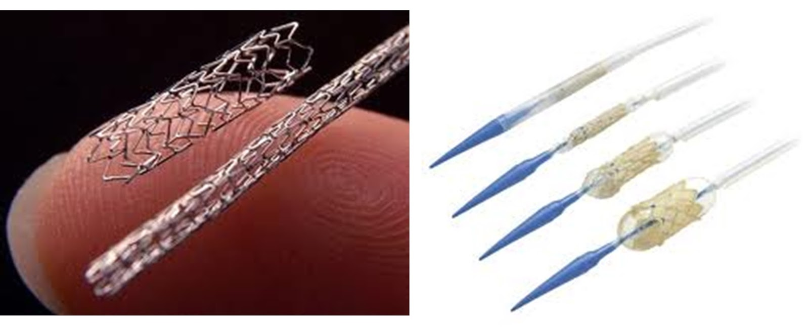 Amazing Science: Angioplasty-What are stents?