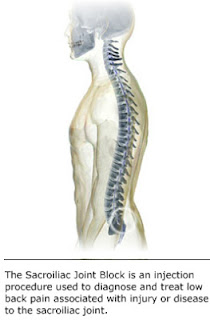 Lower Back Pain-nypainsolutions