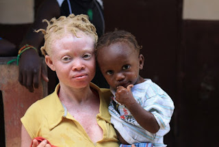In Africa selling albino body parts is a money-making business.