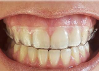 ¿Quién me va a realizar el tratamiento de ortodoncia?