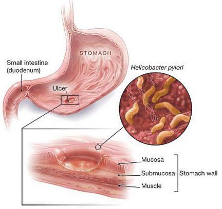 Penyakit, Gangguan dan Kelainan pada Sistem Pencernaan Manusia (Infeksi Saluran Pencernaan)
