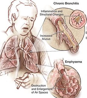 Makanan Sehat Yang Dianjurkan Untuk Penderita Bronkhitis