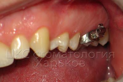 Установка ортодонтических колец