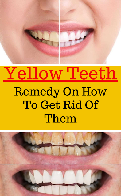 Remedy On How To Get Rid Of Yellow Teeth