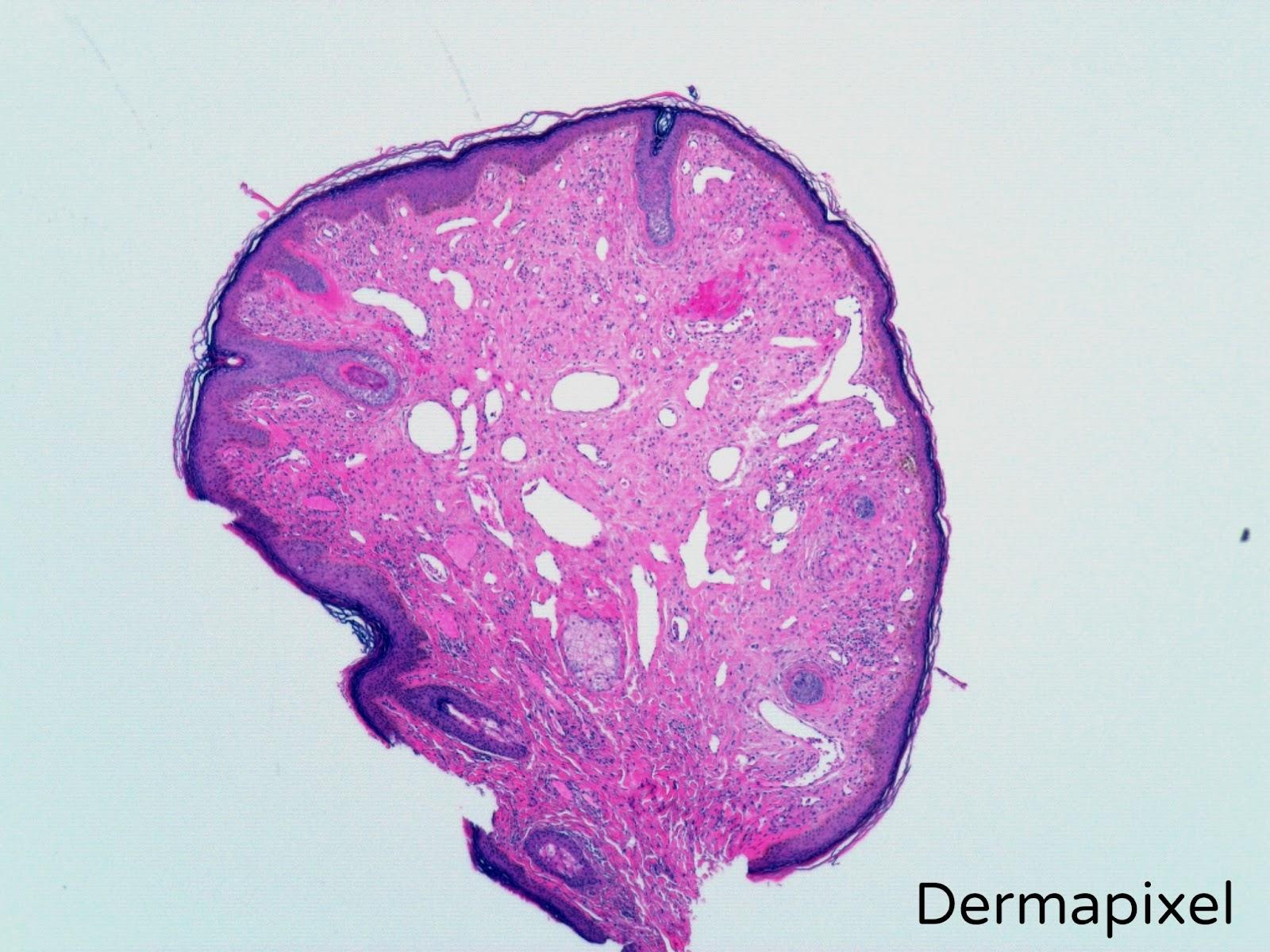 Dermapixel: Pápula fibrosa de la nariz: ni es un lunar, ni una verruga