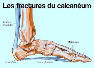 Les fractures du calcanéum