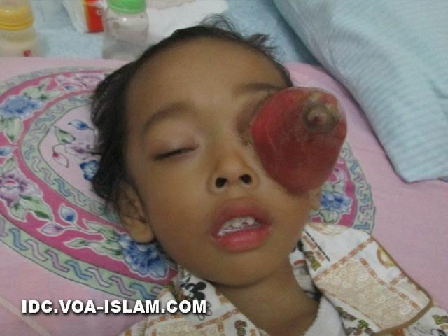 Cara mengobati kanker mata pada anak ~ Cara Mengobati ...